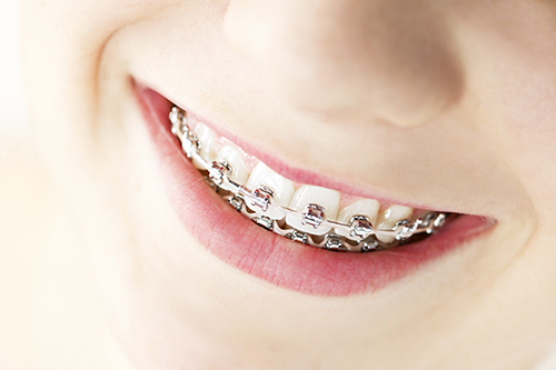 braces in Boca Raton